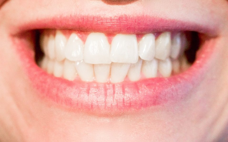 teeth-1652976_960_7201