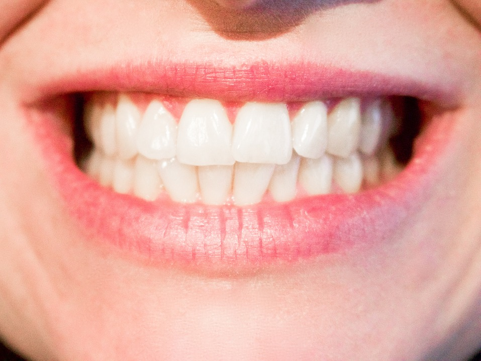 teeth-1652976_960_720